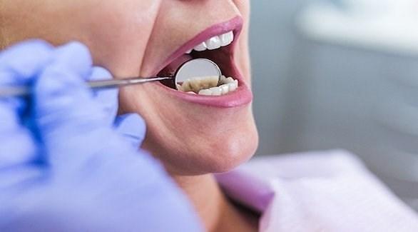 اعراض سرطان الفم الاولى علاج
