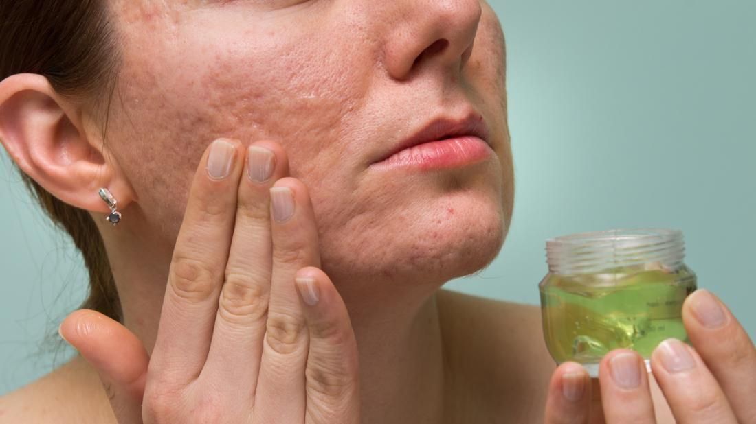 Photo of تعرف على اسباب مرض بكتيريا الوجه الخطير وطرق الوقاية و العلاج منه