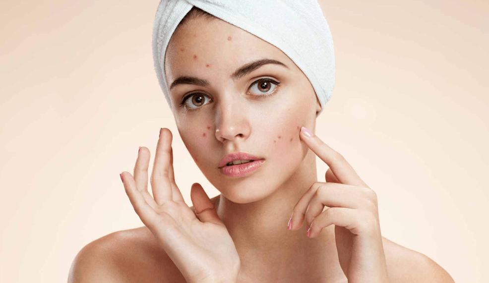 موضوع أفضل علاج طبيعي لحب الوجه