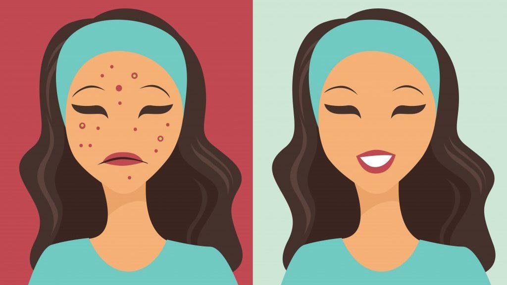 Photo of موضوع أفضل علاج طبيعي لحب الوجه و بثور البشرة عند الشباب